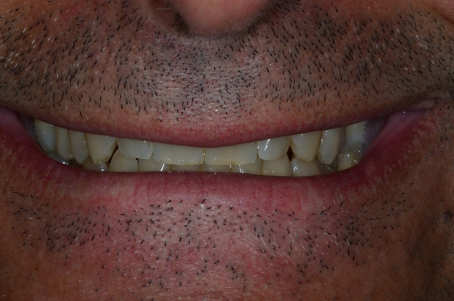 dental treatment planning figure 12