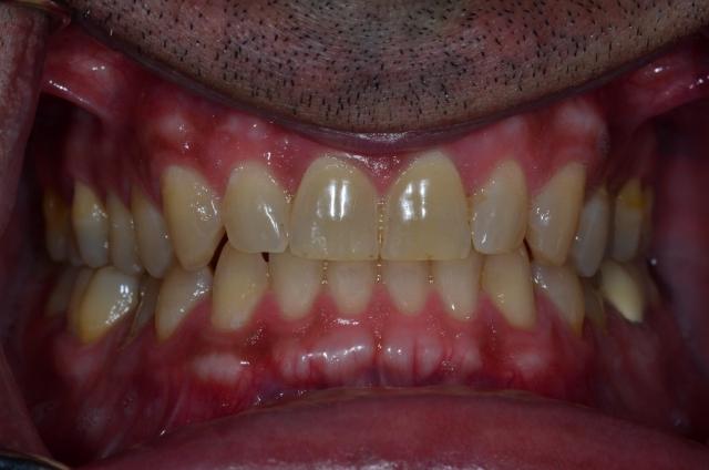 dental treatment planning figure 14