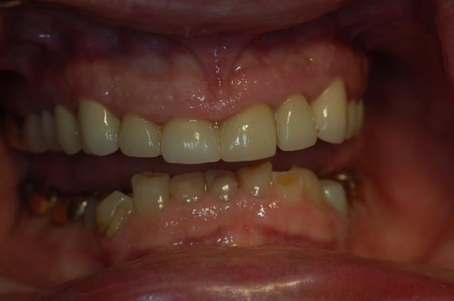 dental treatment planning figure 2