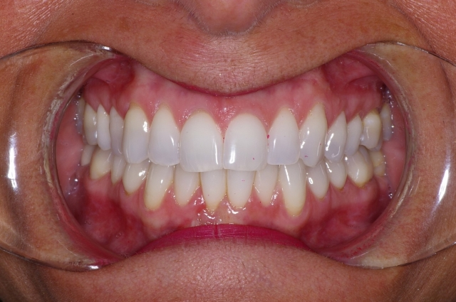 dental treatment planning figure 4