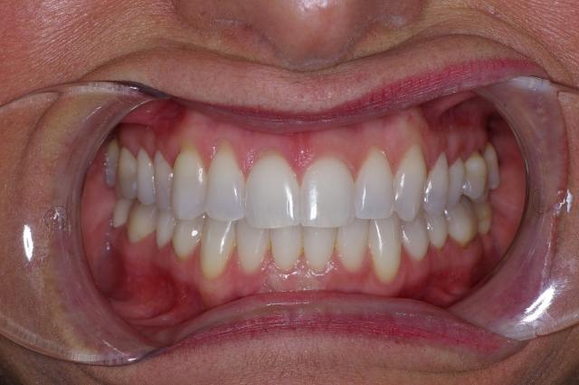 dental treatment planning figure 5