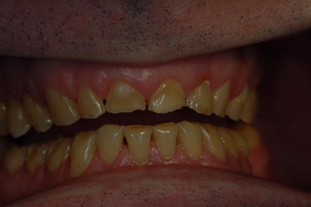 dental treatment planning figure 8