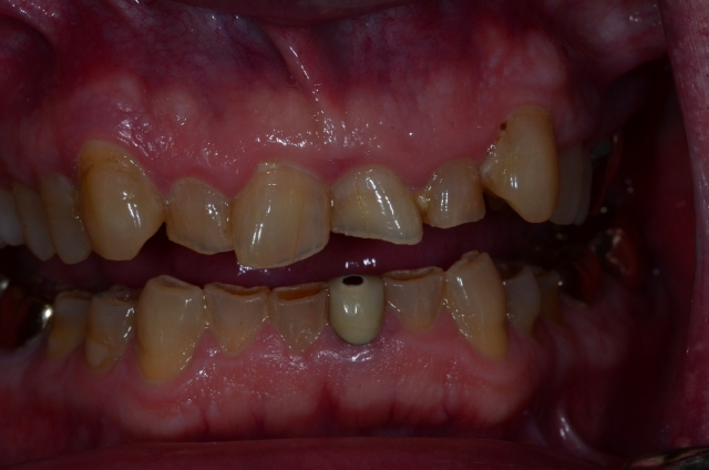 dental treatment planning figure 9