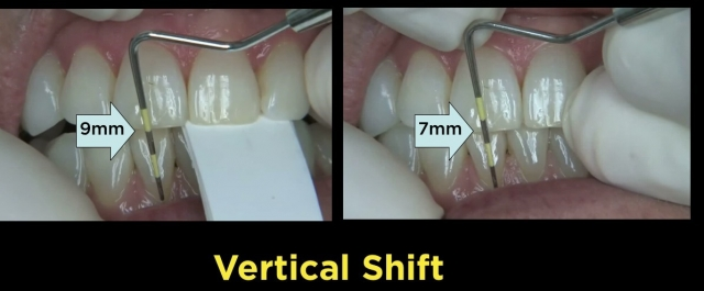 vertical shift margin