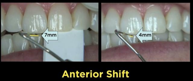 anterior shift teeth