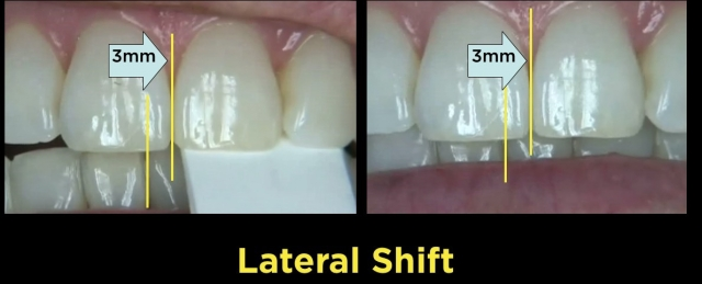 measuring lateral anterior tooth shift