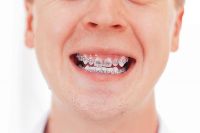orthodontics figure 2
