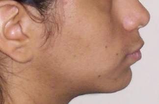 facial esthetics profile