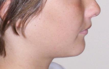 cephalometrics facial profile