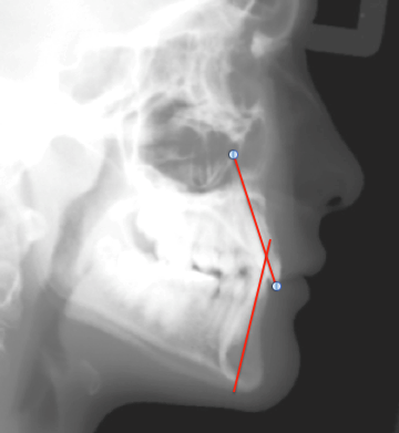 interincisal angle x ray