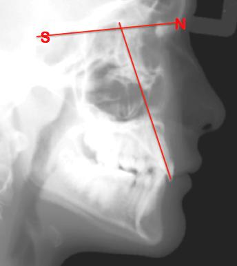 maxillary incisor angle