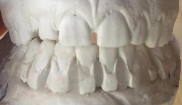 Lower left bicuspid extraction option photo