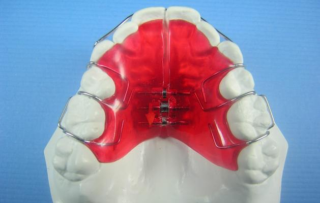 Anterior Bite Plate
