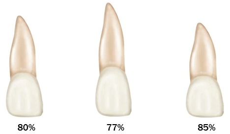 tooth height to width ratios