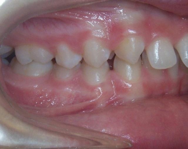 optimal orthodontic referral timing figure 2