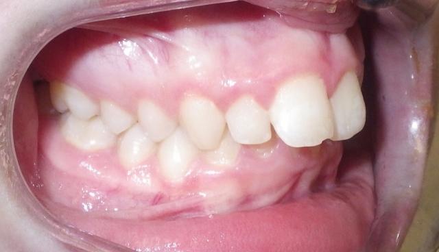 optimal orthodontic referral timing figure 6