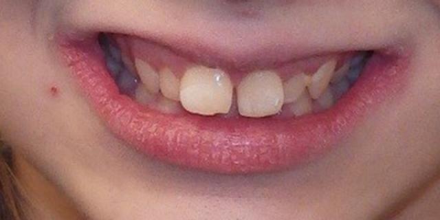 optimal orthodontic referral timing figure 9