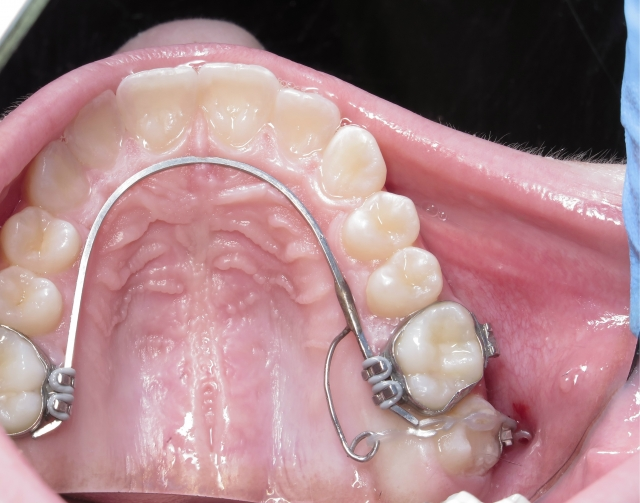 Limited orthodontic options Figure 2