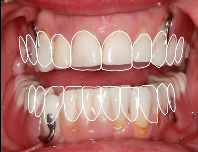 Converting denture to interim hybrid - Figure 1