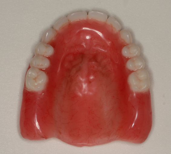 Converting denture to interim hybrid - Figure 2