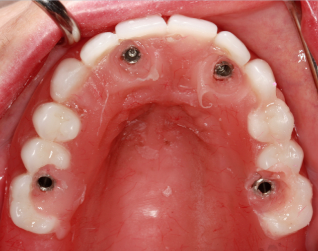Guide to converting denture to interim hybrid - Figure 6