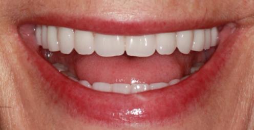 Guide to converting denture to interim hybrid - Figure 9
