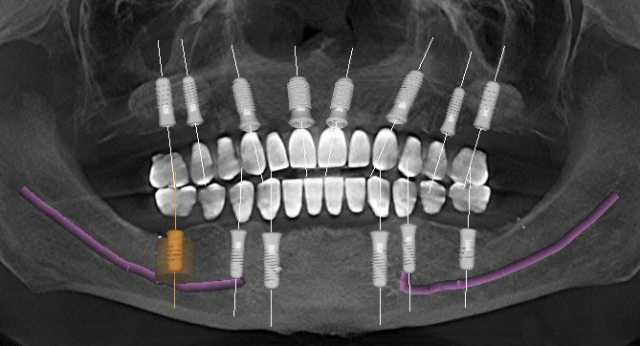 implants in edentulous maxilla