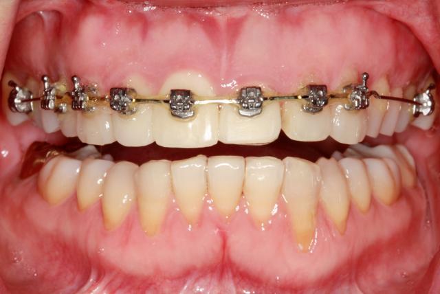 implants figure 5