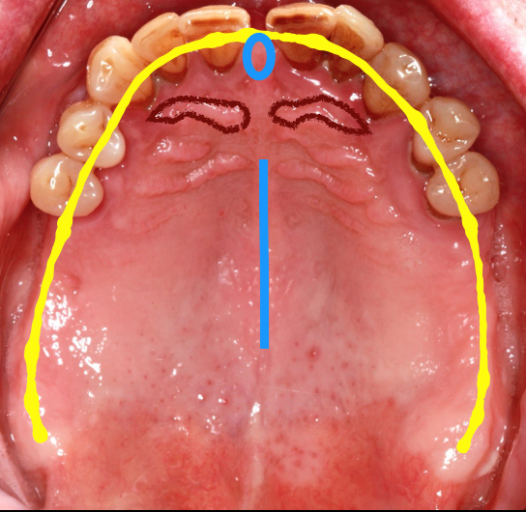 sectional impression techniques figure 7