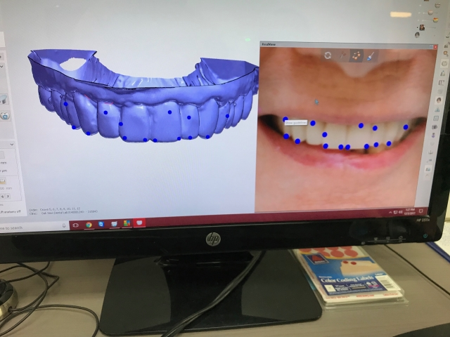 communicating lab changes in the dental practice