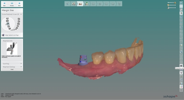 digital planning of implant placement