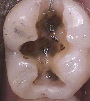 dental composite figure 1