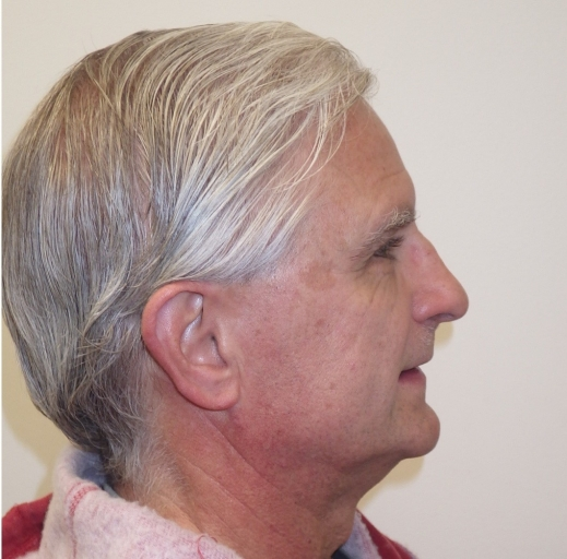 adult orthodontic case acceptance figure 10