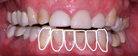 adult orthodontic case acceptance figure 12