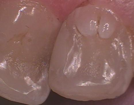 dental composite figure 16