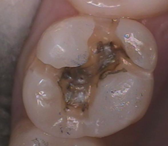 dental composite figure 4