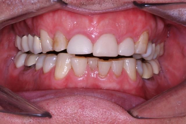 adult orthodontic case acceptance figure 4