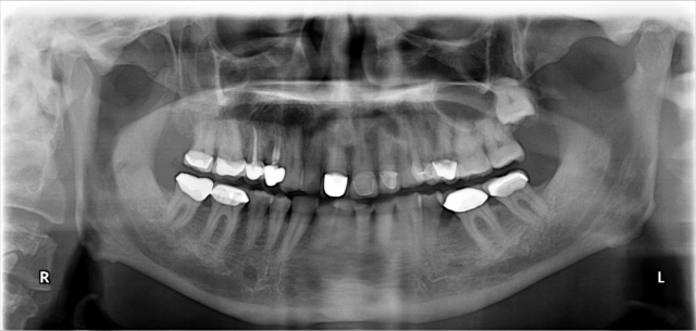 adult orthodontic case acceptance figure 7