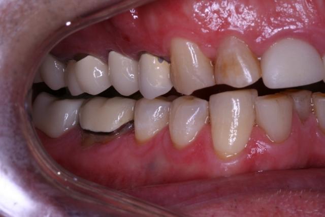 adult orthodontic case acceptance figure 8
