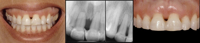 When and when not to splint restorations and/or teeth