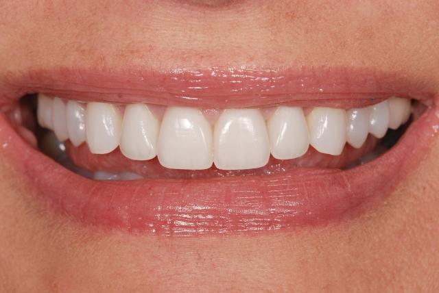 dental-restoration