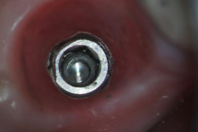 damaged implant figure 1