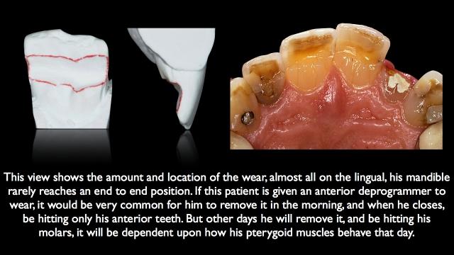 muscle reprogramming dentistry