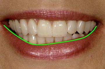lip asymmetry facial esthetics