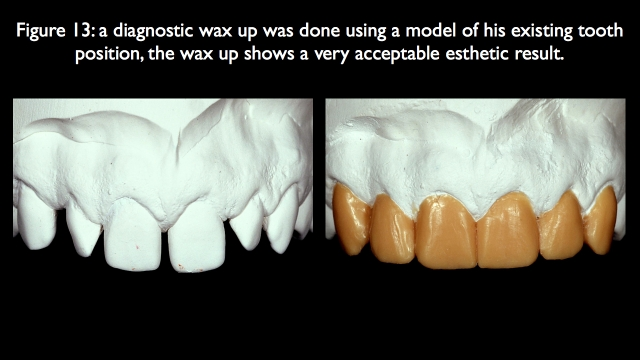 diagnostic wax-up was done
