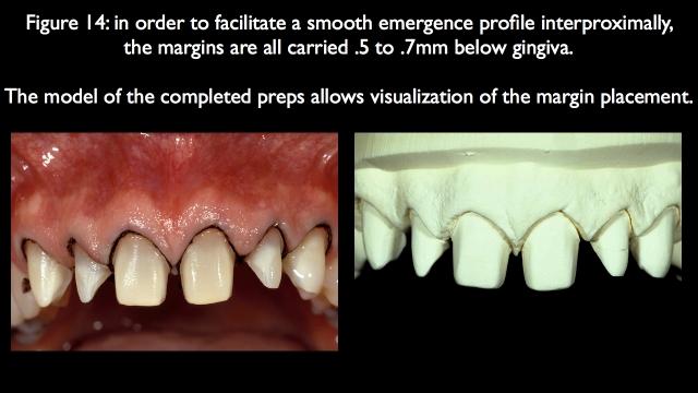 facilitating a smooth emergence profile interproximally