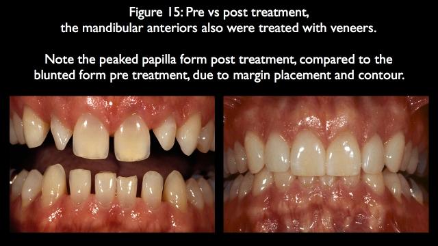mandibular anteriors treated with veneers