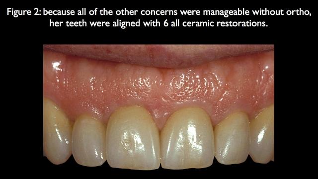 when restorative dentistry instead of orthodontics works better