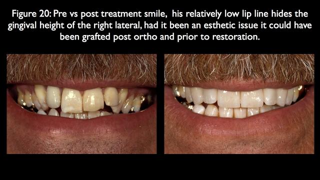 pre vs post-op treatment for orthodontics