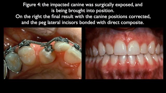 orthodontics to adjust occlusion